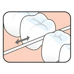 Hilo Seda Dental 2